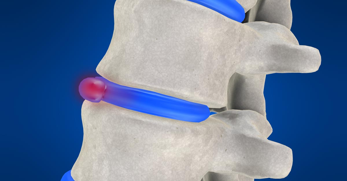 Tumwater non-surgical disc herniation treatment